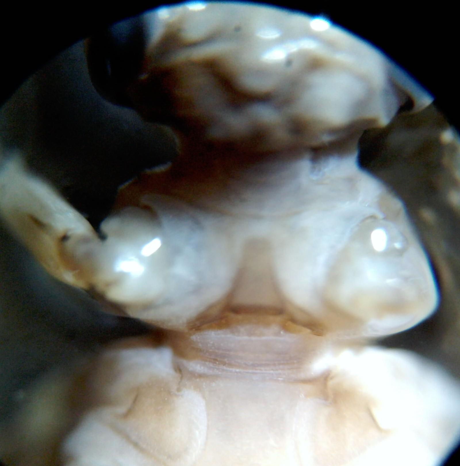 ventral prothorax